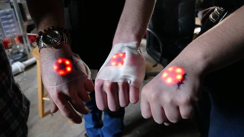 The Latest Trend Among Biohackers Is Implanting LED Lights Beneath Your Skin