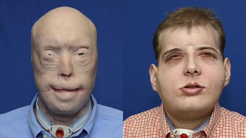 Behold the Most Extensive Face Transplant in Medical History