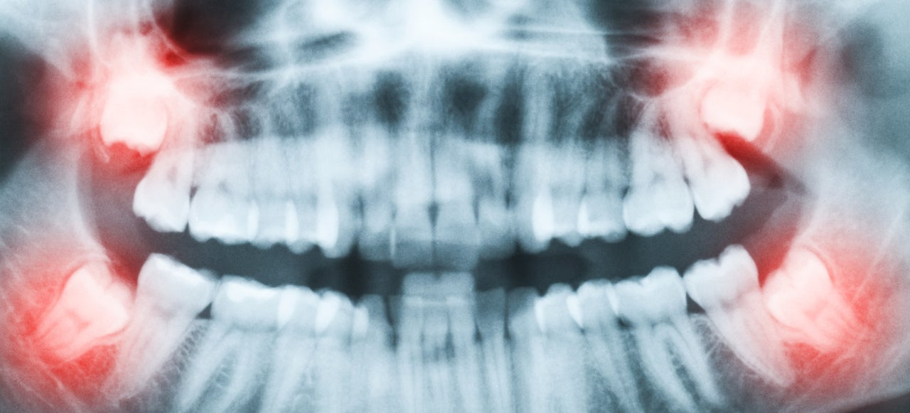 Dentists Found A Pain-Free Cavity Fix That Might Actually Work