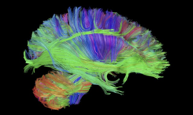 This Isn't a Fright Wig. It's How GE's MRI Scanner Sees Your Brain