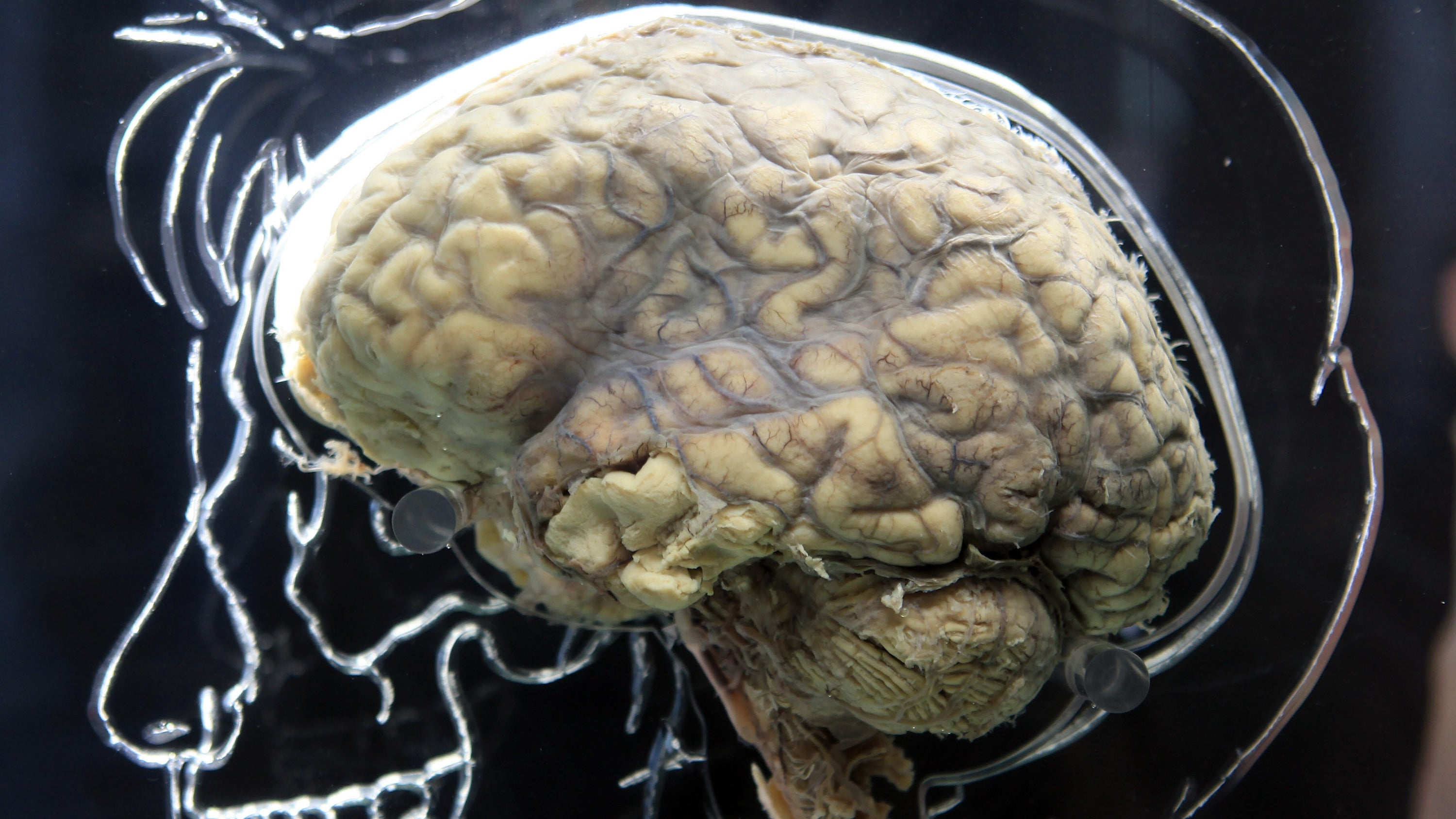 Scientists Have Mapped Out How Our Genes Might Lead To Mental Illness