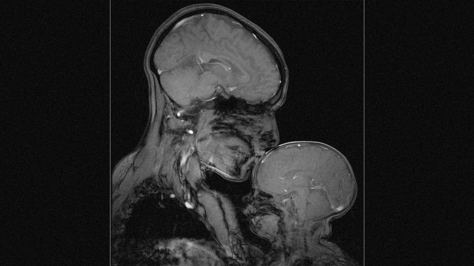 MRI of Mother and Child Shows Love Through The Eyes of Science