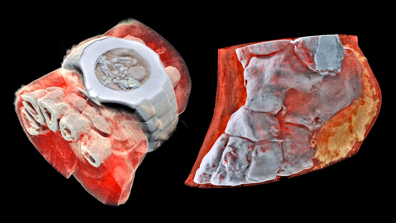 The World's First Full-Colour, 3D X-rays Are Freaking Me Out