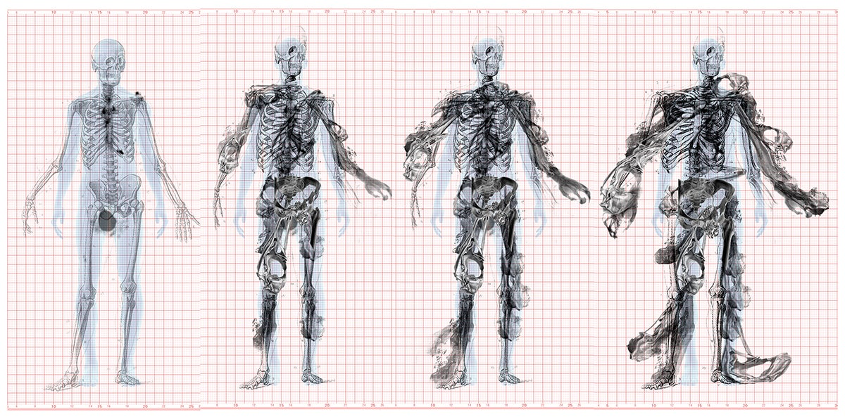 These Cancer-Deformed Skeletons Are Inspiring the Design of a Building
