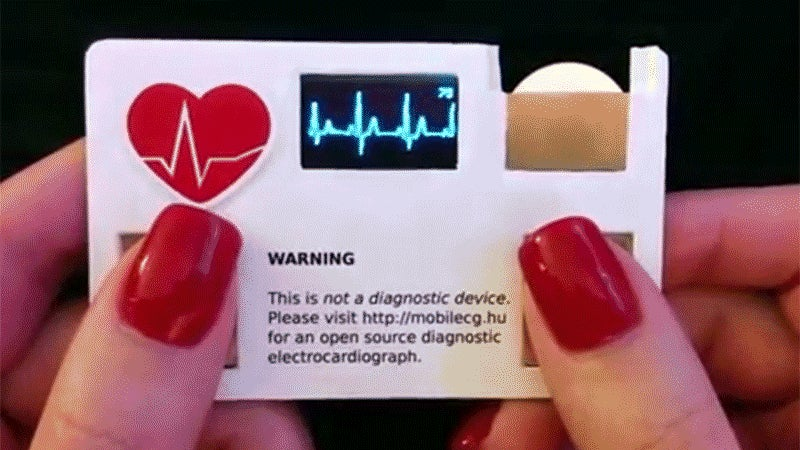 Every Doctor's Business Card Should Have a Built-in Heart Rate Monitor