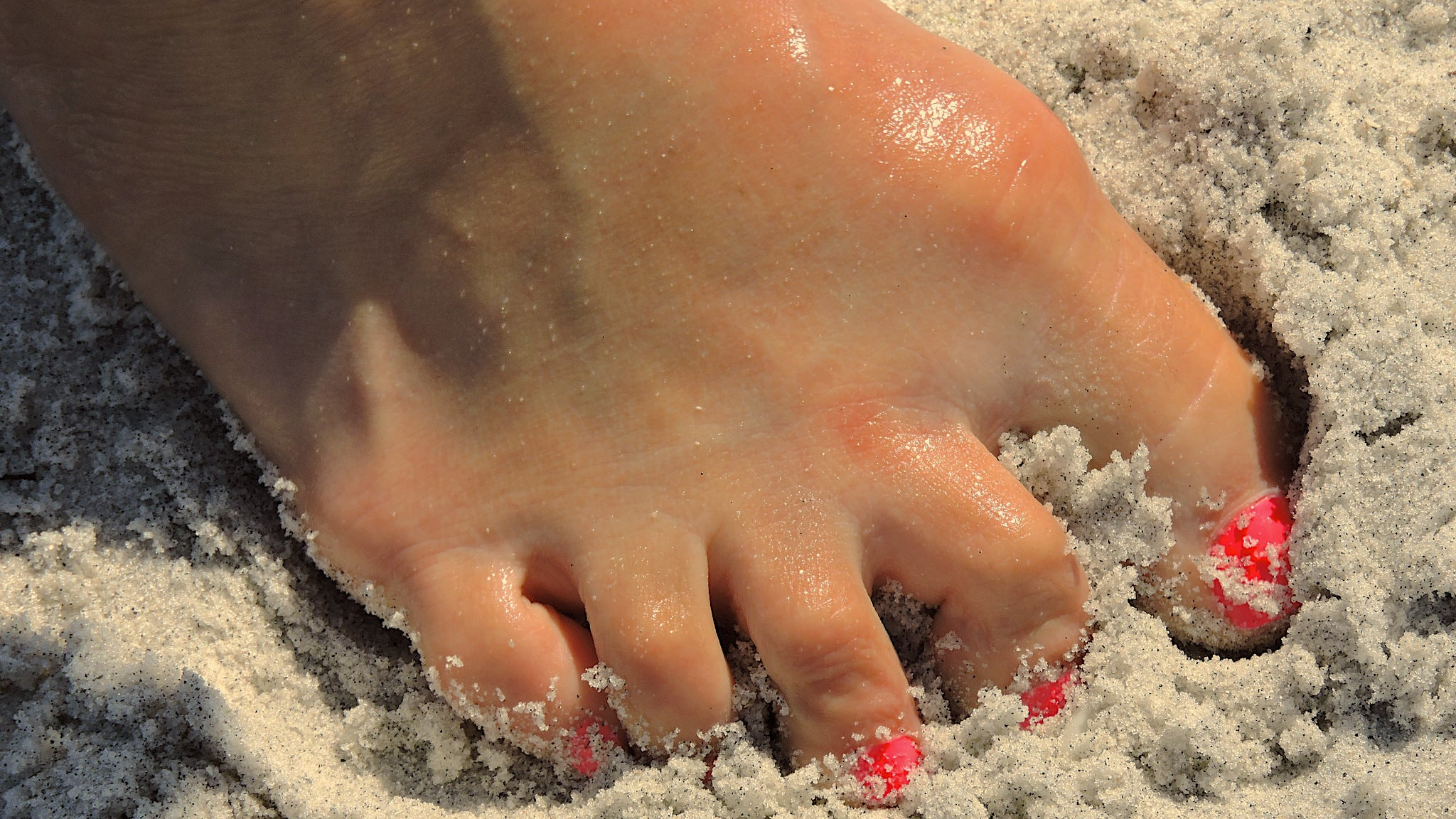 How To Prevent Getting Hookworms On Your Next Beach Holiday