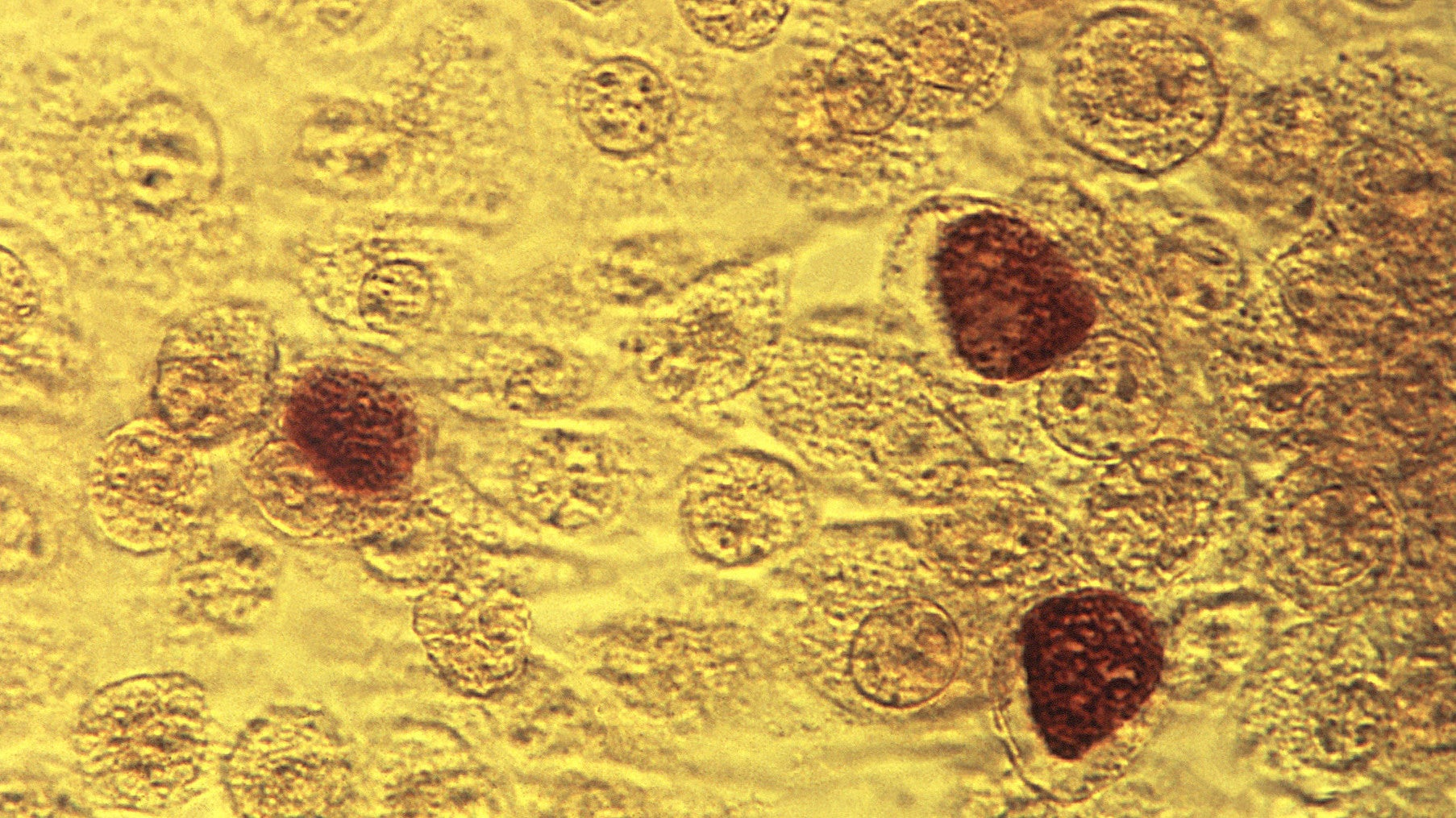 A Chlamydia Vaccine Shows Promise In Early Human Trial