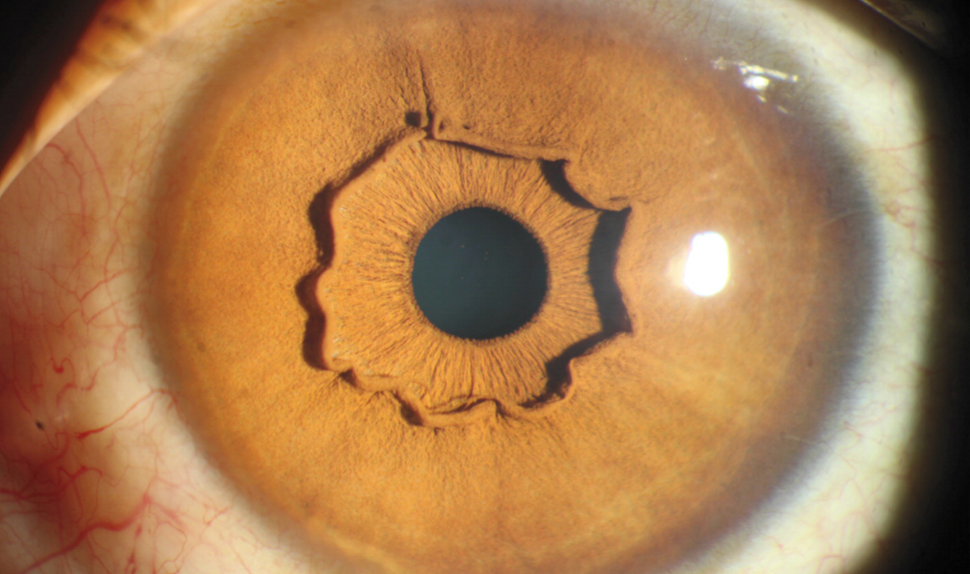 What The Hell Is Going On With This Eyeball?