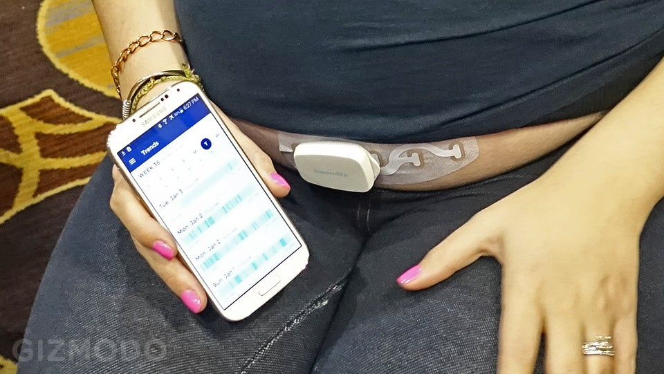 There Is Now A Wearable For Babies Before They Are Born