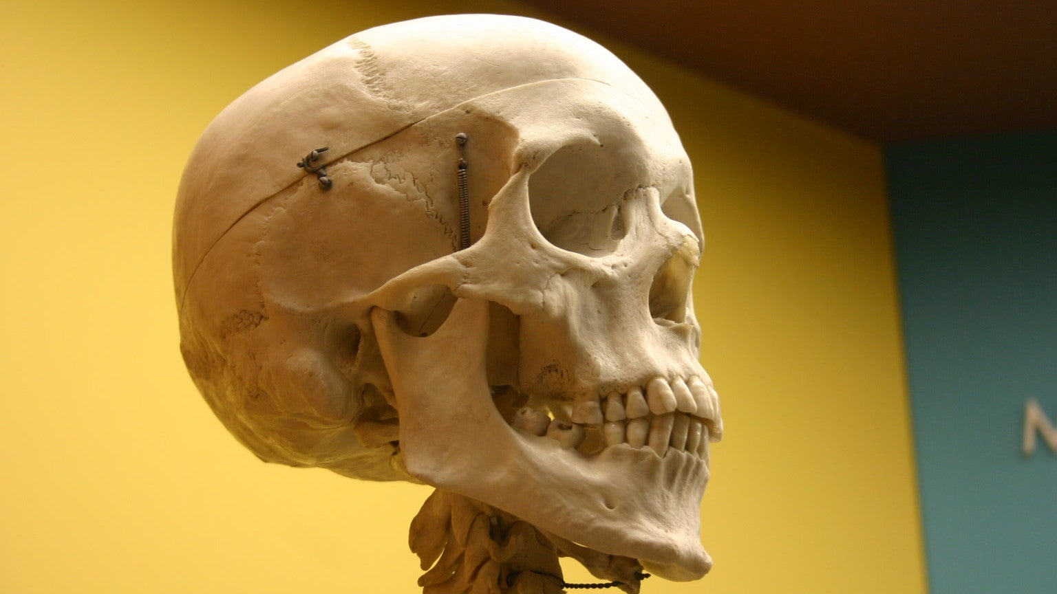 Your Bones Secrete A Hormone That Can Make You Panic, Scientists Find