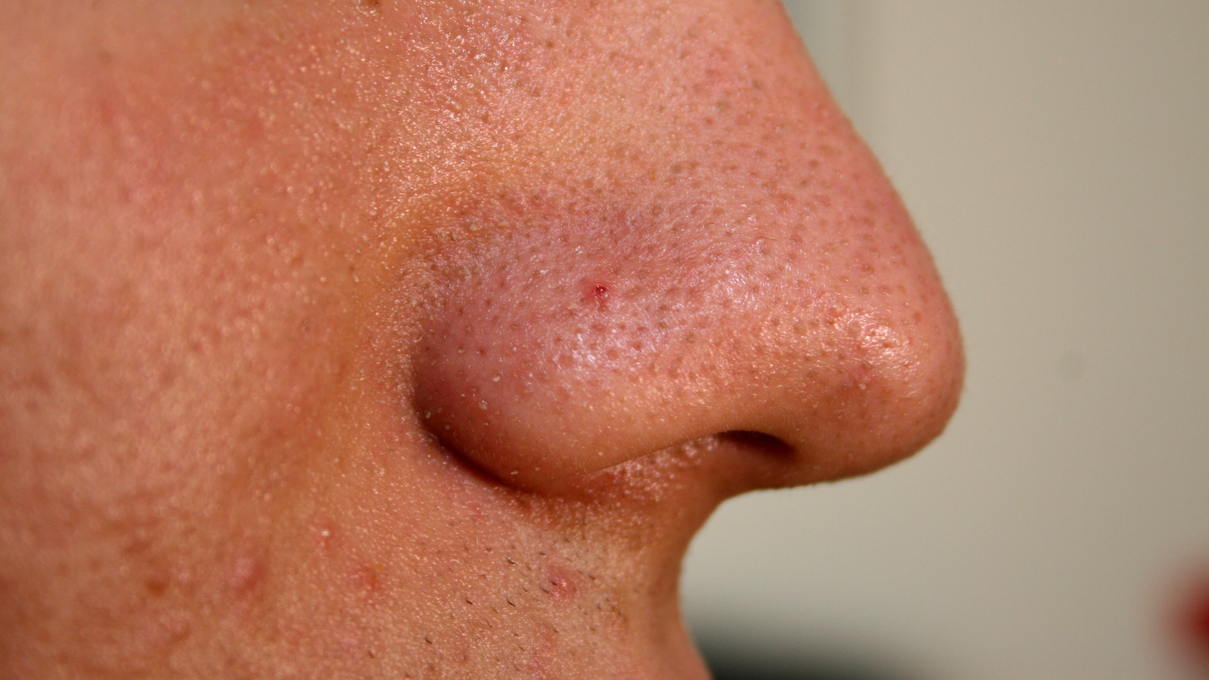 New Acne-Fighting Compound Blocks Inflammation And Kills Bacteria Without Irritating Side Effects