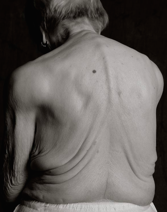 What the human body looks like at 100 years old