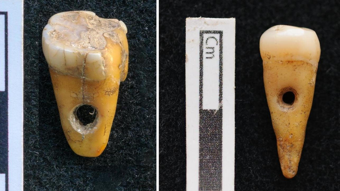 Prehistoric Turks Wore Human Teeth As Jewellery, Rare Discovery Reveals