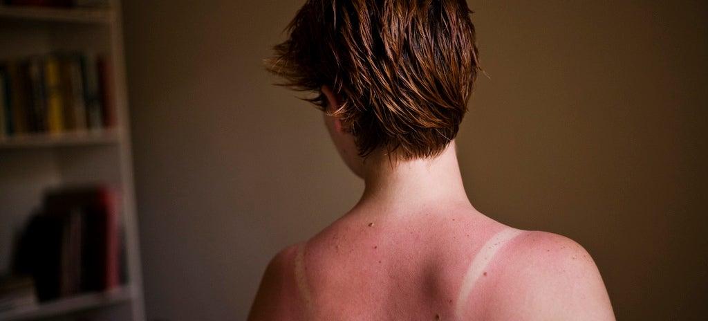 Sun Keeps Damaging Skin Cells For Hours After Exposure