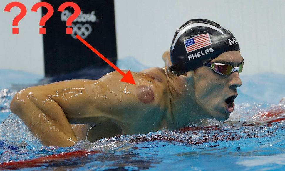 Those Weird Purple Circles On Michael Phelps Were From Cupping