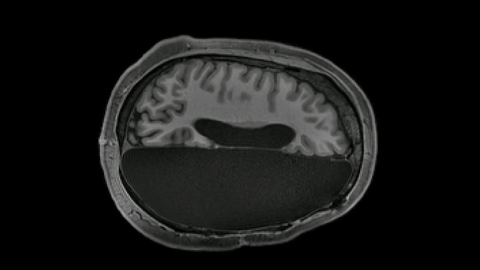 Remarkable Scans Show How The Human Brain Rewires Itself After Half Is Removed