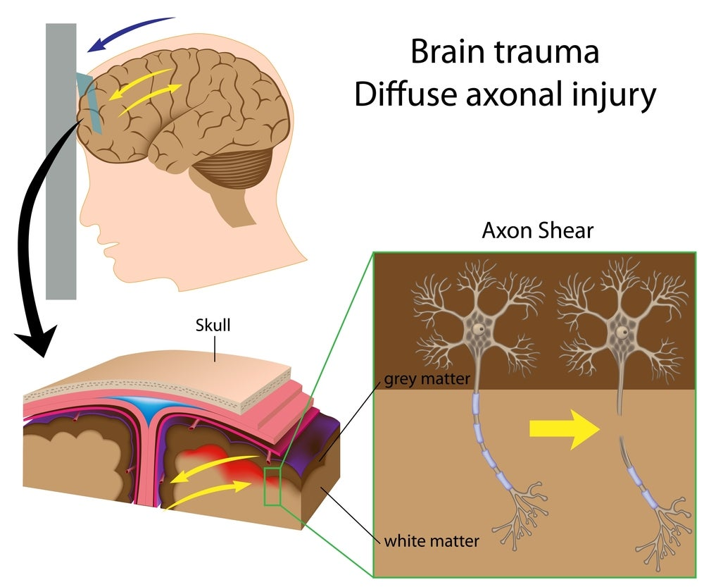 Why a Head Injury Can Be Far Worse Than You Realise