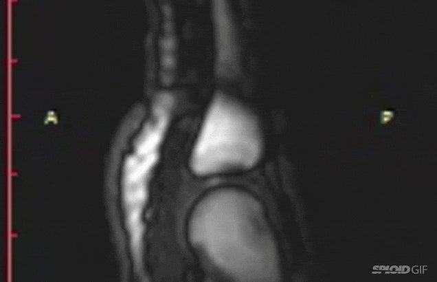 MRI video reveals what it actually looks like when you crack your joints