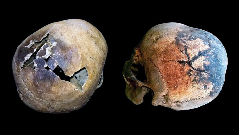 Intense Heat From Ancient Vesuvius Eruption Caused Victims' Skulls To Explode