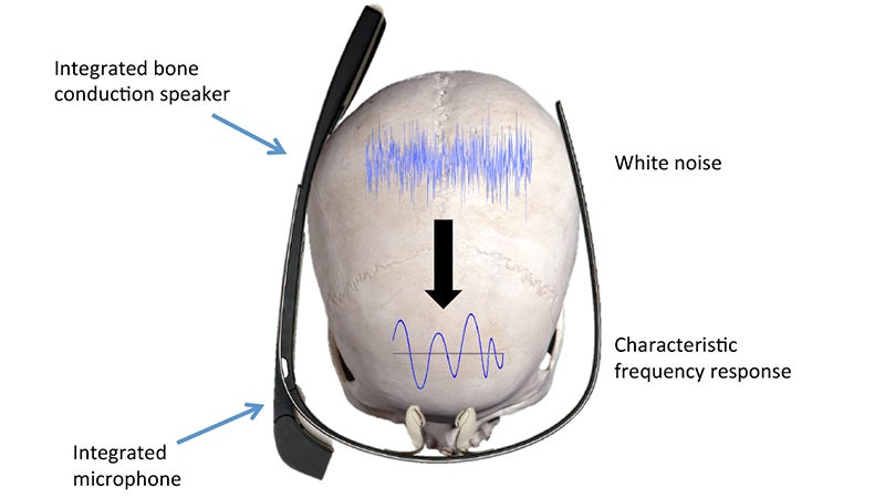You'll Never Forget Your Password When It's the Sound Your Skull Makes
