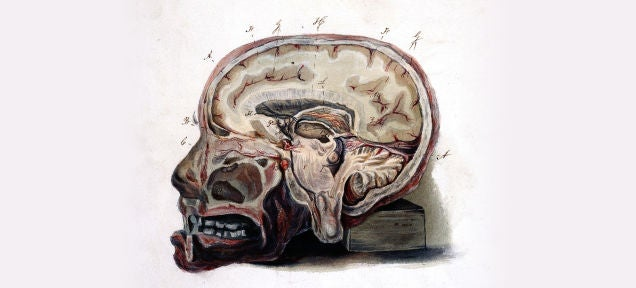 Left in the Brain: The Potentially Toxic Residue from MRI Drugs