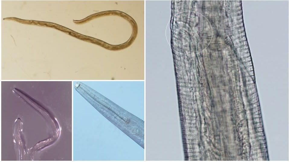 A Second Woman Has Gotten Parasitic Eye Worms, And Surely We're All Next