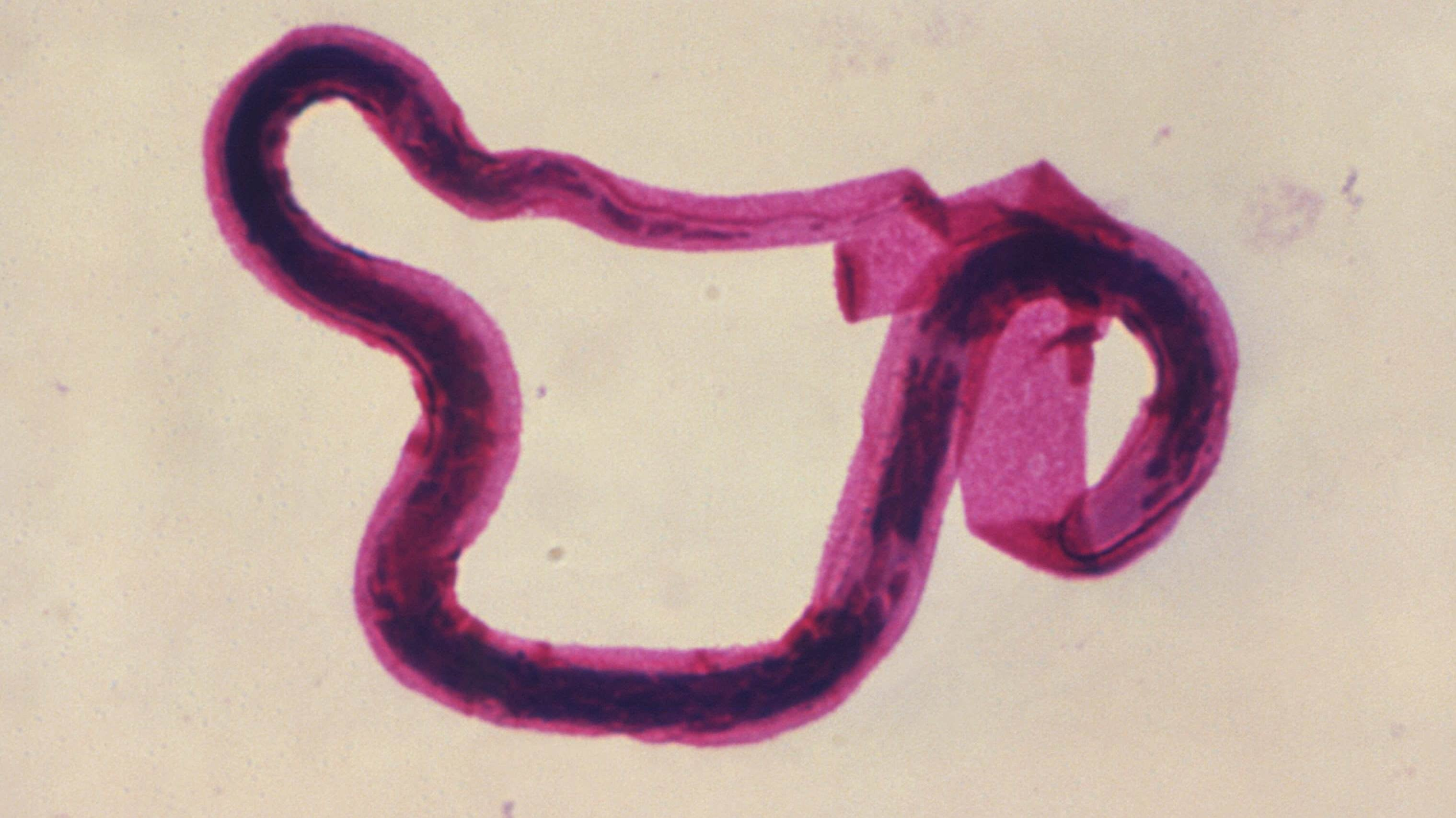 A Man's Worm Infection Left Him With A 'Stony Hard' Testicle