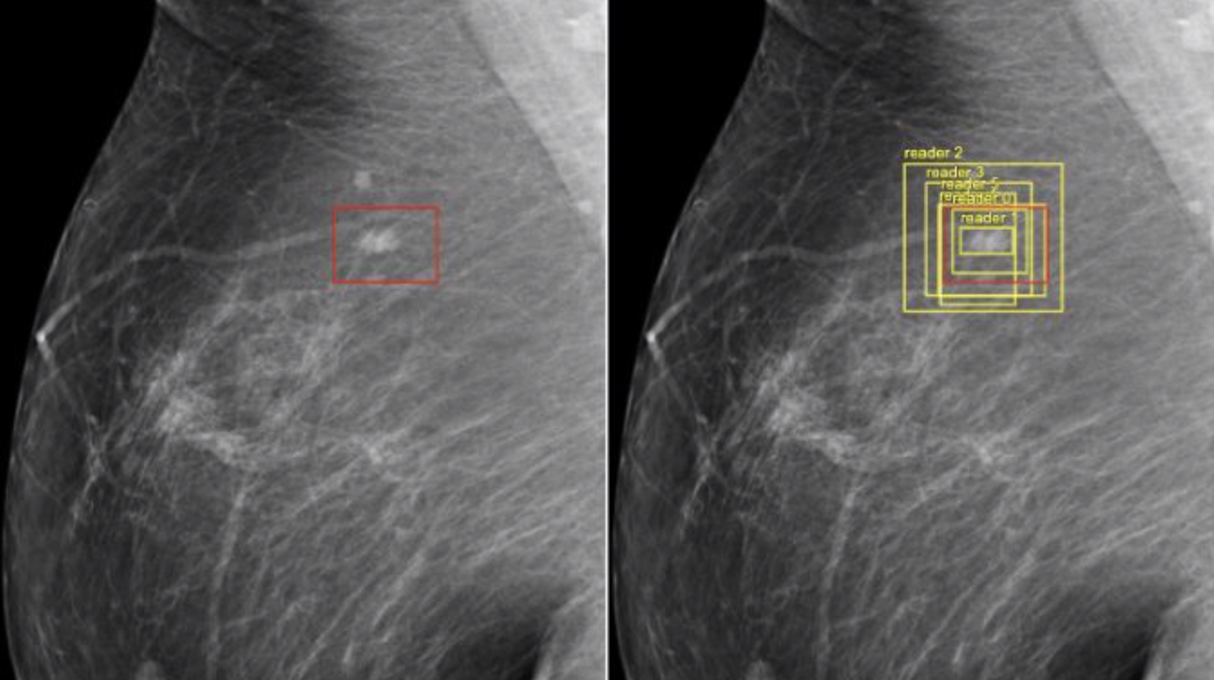 Google's AI Proves Better At Detecting Breast Cancer Than Doctors