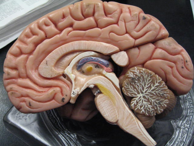 Brains Of People With Schizophrenia Attempt Self-Repair: Study