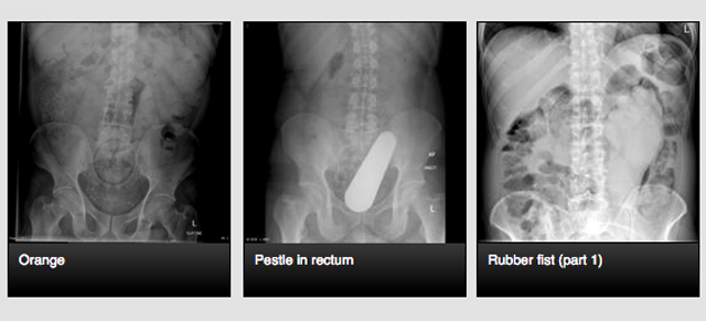 The Site Where Doctors Share X-Rays of Weird Things in People's Butts