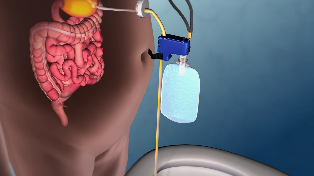 New Weight-Loss Device Sucks Food Directly Out Of Your Stomach