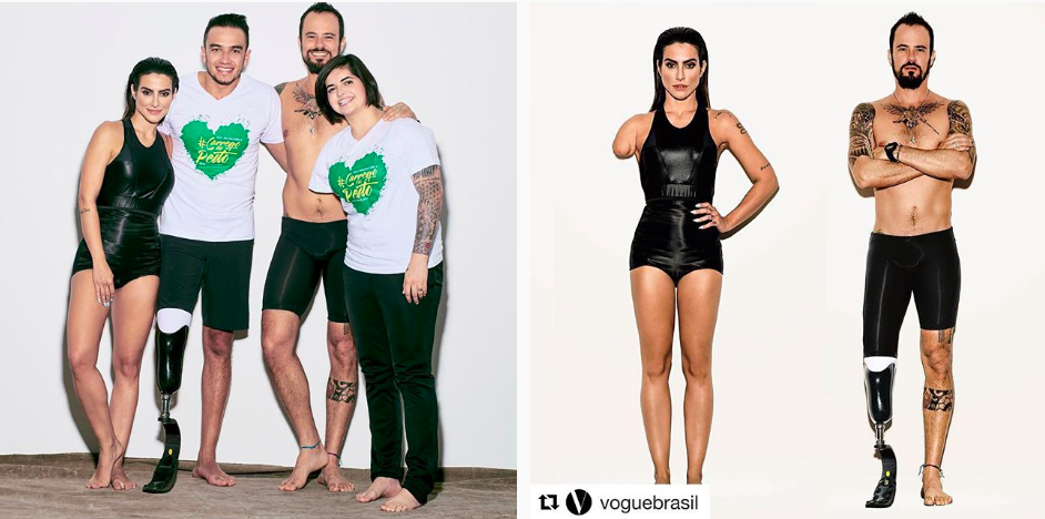 Vogue Brazil Photoshopped Models To Look Like They Have Disabilities