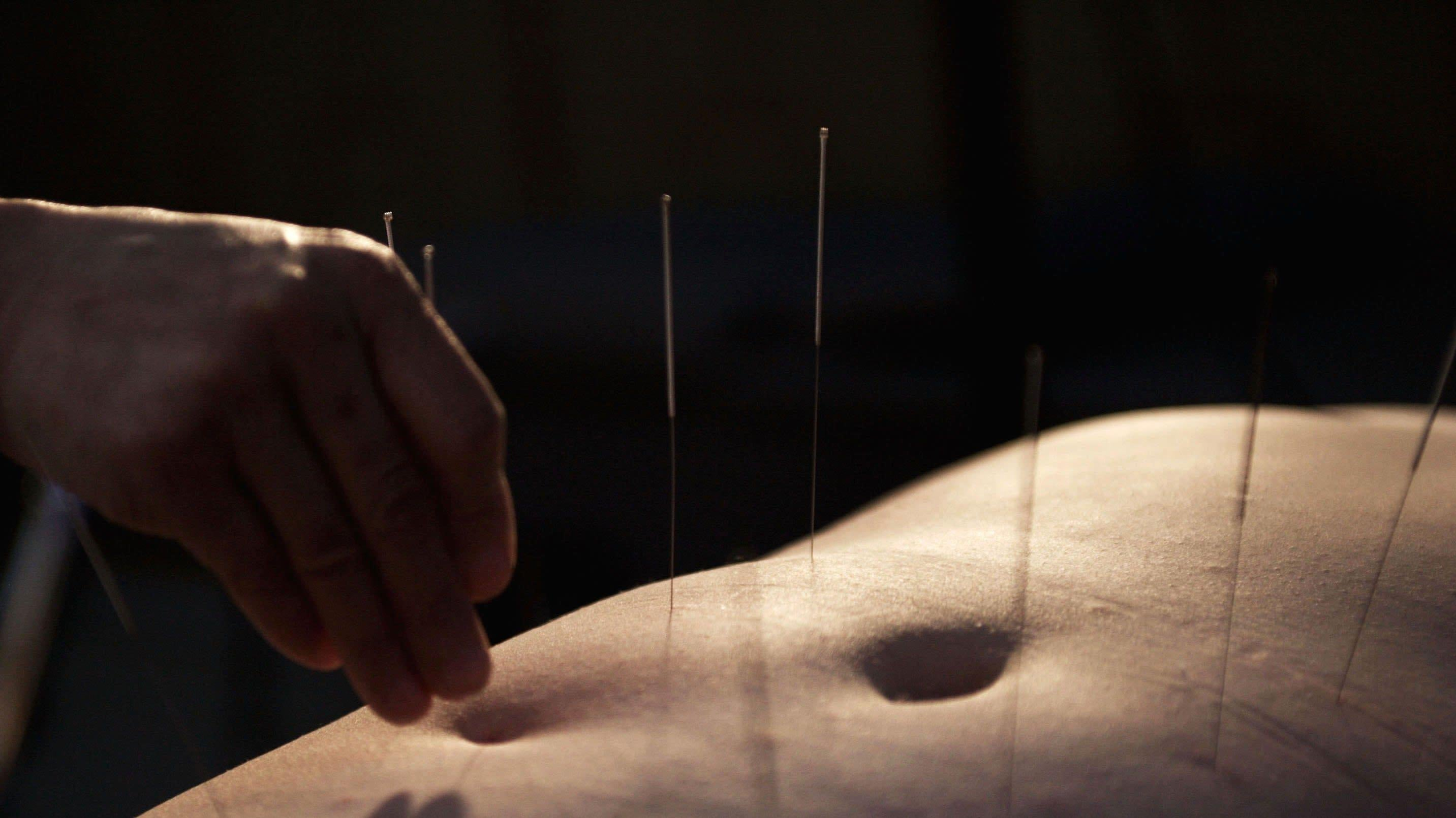 Acupuncturist Went Too Deep, Punctured Patient's Lungs