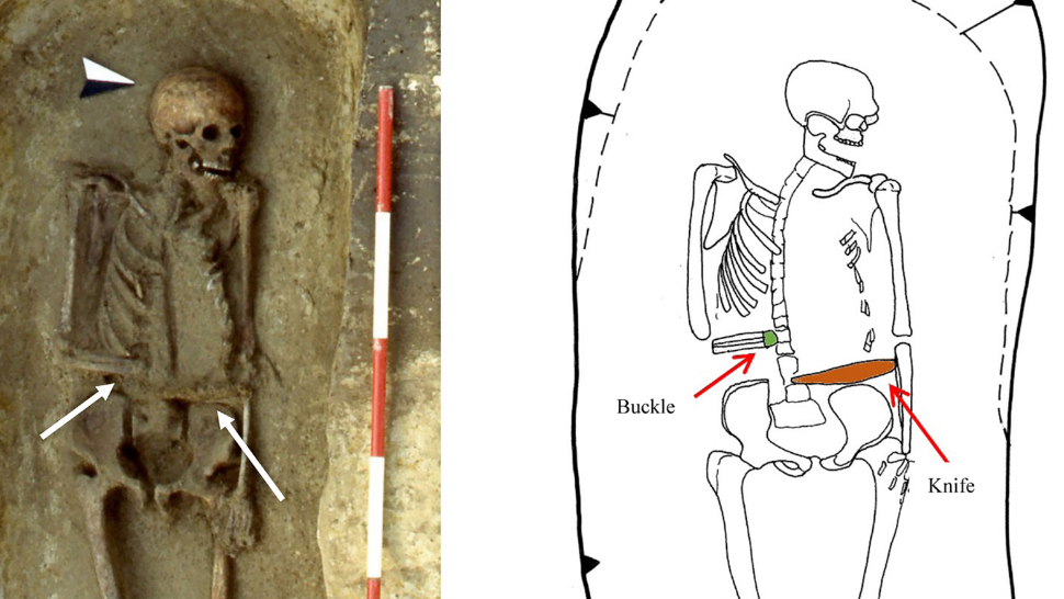 Medieval Italian Man Replaced His Amputated Hand With A Knife