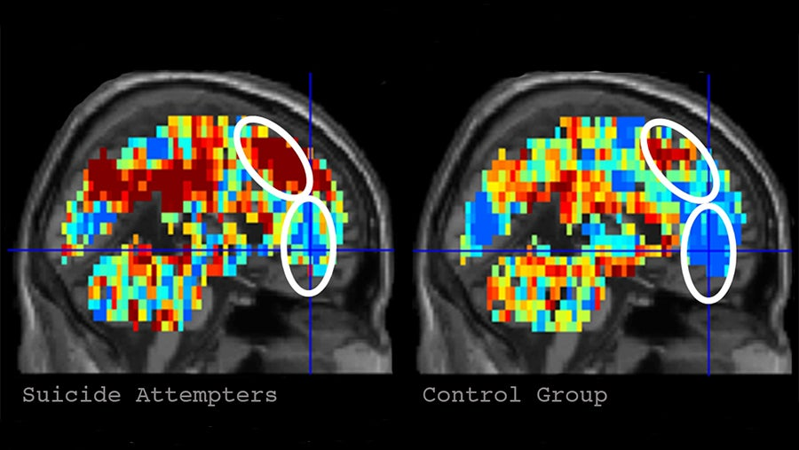 Artificial Intelligence Detects Suicidal Tendencies In People Using Brain Scans