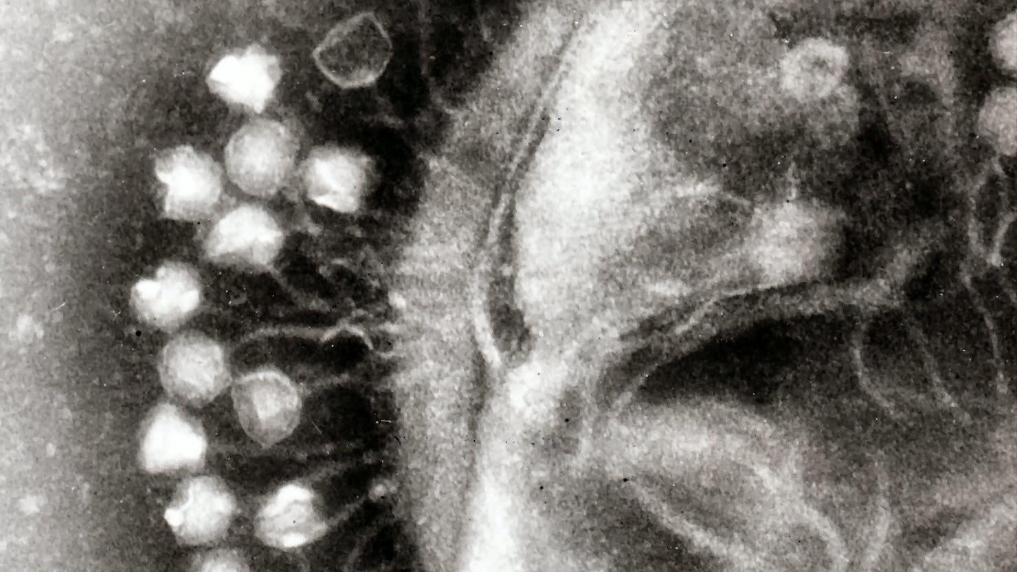 Scientists Find Over 300 'Huge' Viruses With Strange Abilities