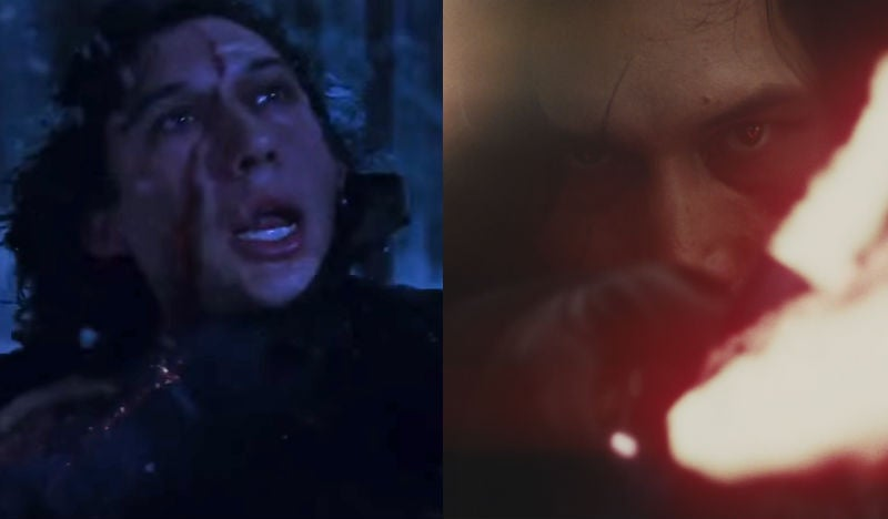 Rian Johnson Changed Kylo Ren's Scar In Last Jedi Because He Thought It Looked Goofy