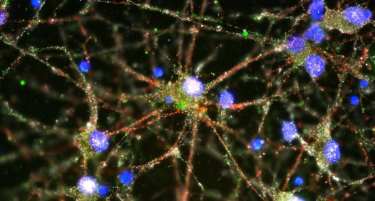 Scientists Have Finally Found a Biological Process Behind Schizophrenia