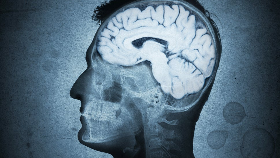 Rare Genetic Mutation May Explain Some Forms Of Multiple Sclerosis