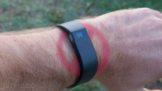 Are We Doomed to Get Rashes from Our Fitness Trackers?