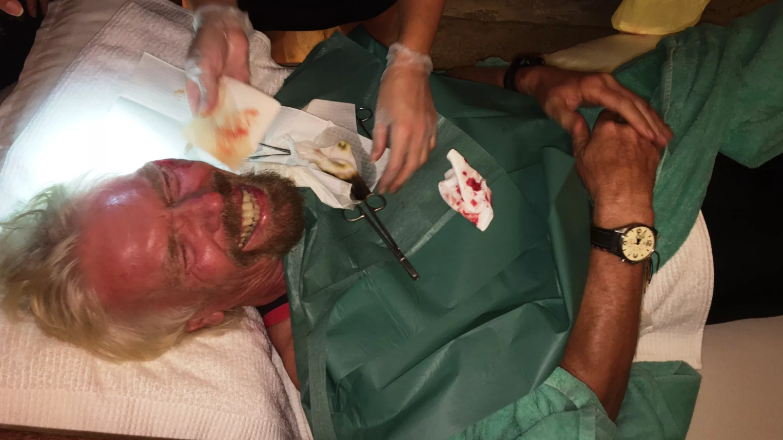 Richard Branson Got In Bloody Bike Crash, Lived To Blog About It