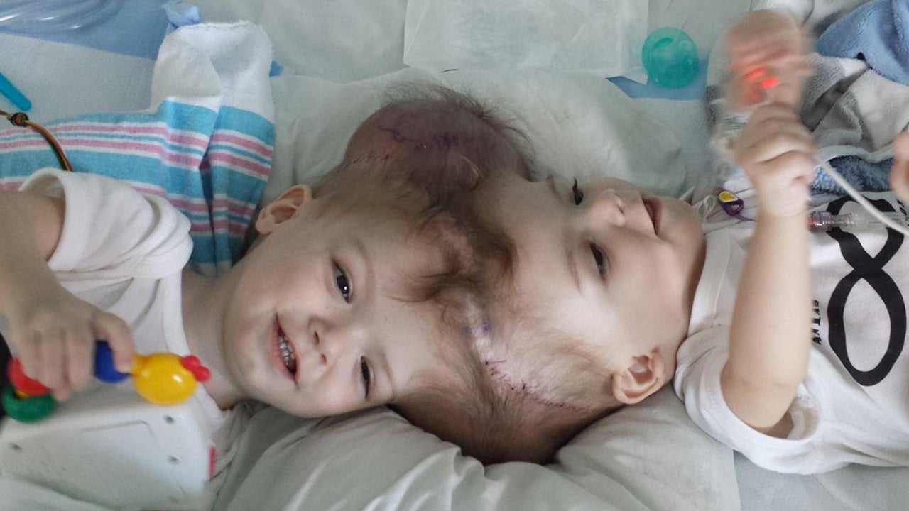 What To Do With Used Car Seats >> 13-Month-Old Twins Conjoined At The Head Successfully Separated | Gizmodo Australia