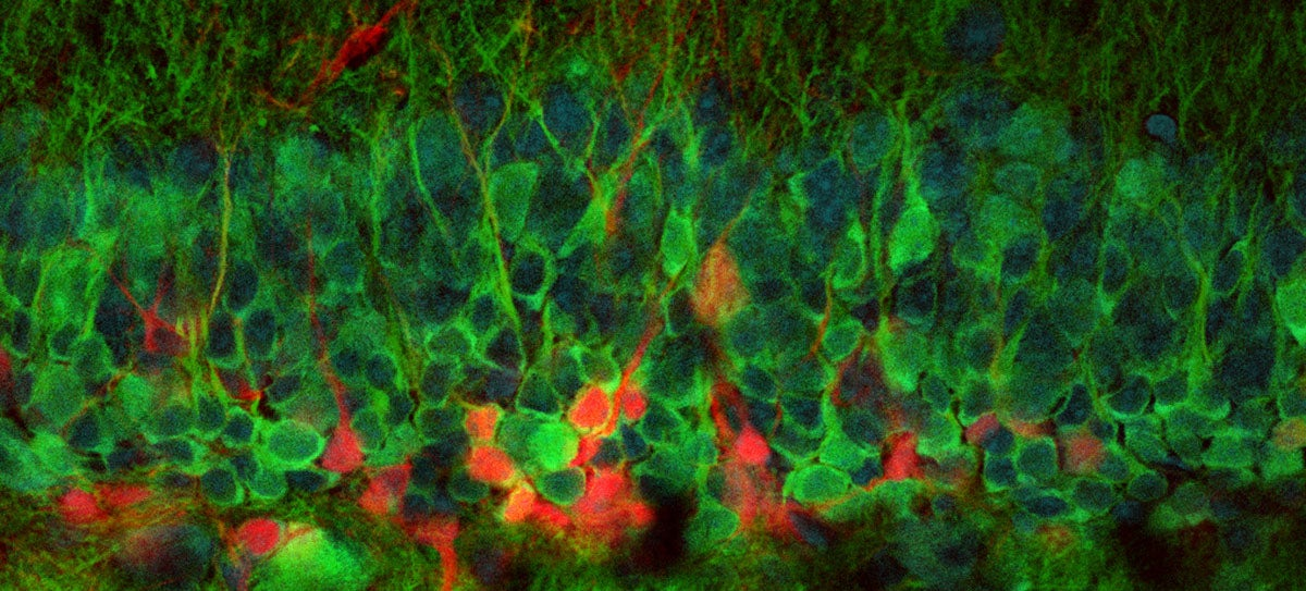 This Is the First Ever Image of New Neurons Forming in a Live Brain