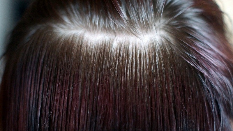 Two Simple Ways To Check If Your Hair Loss Is Within Normal Limits