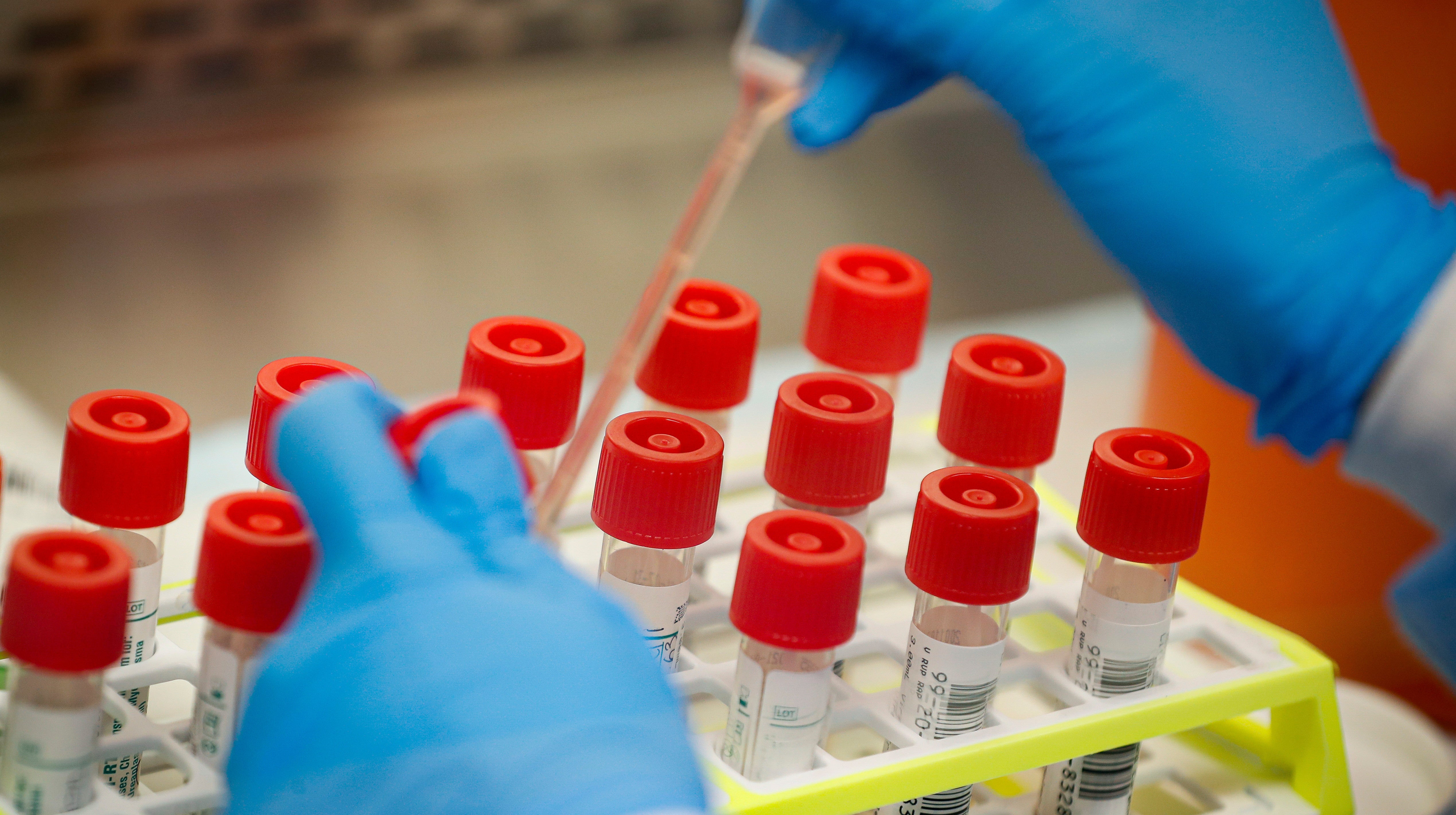Can Scientists Justify Intentional Coronavirus Infections To Speed Vaccine Creation?