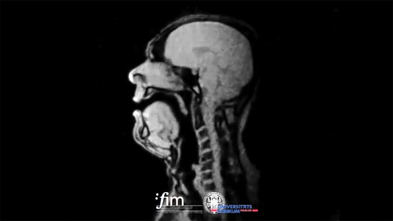 Looking Inside an Opera Singer's Head With an MRI Is So Freaky