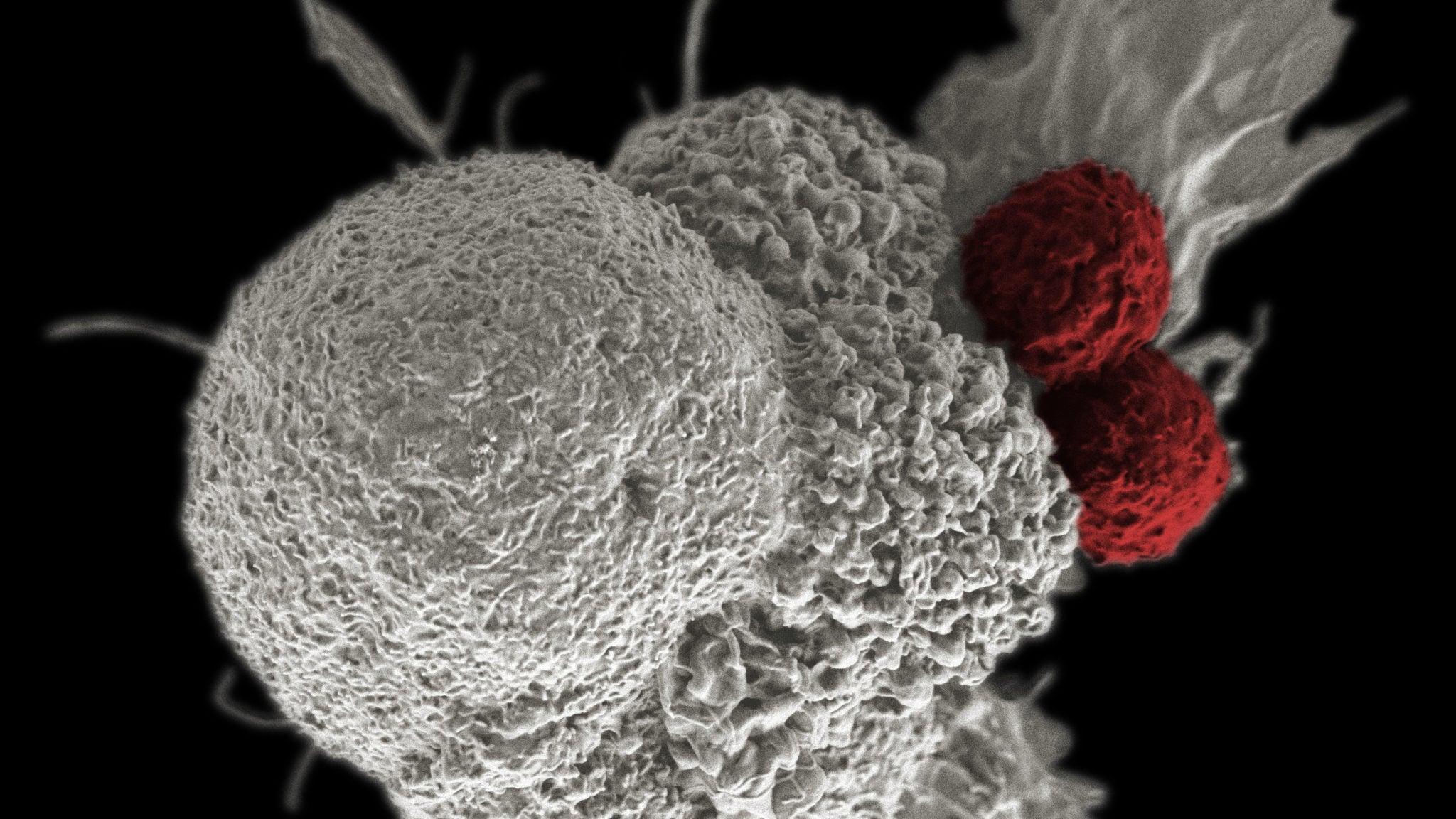 An Innovative New Cancer Therapy Hijacks Bacteria To Fight Tumours